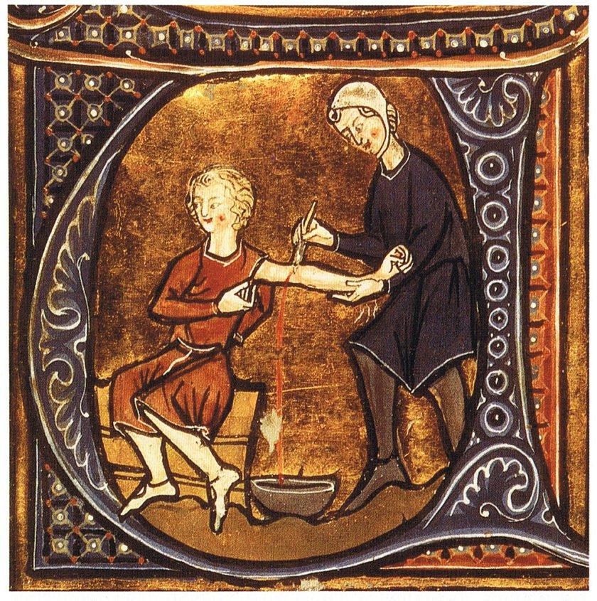 Tratamentos médicos da idade média - Sangramento